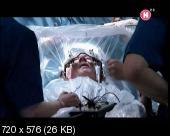BBC: Тайны мозга. Самоконтроль / ВВС: The Brain. A Secret History - Mind Control (2011) DVB